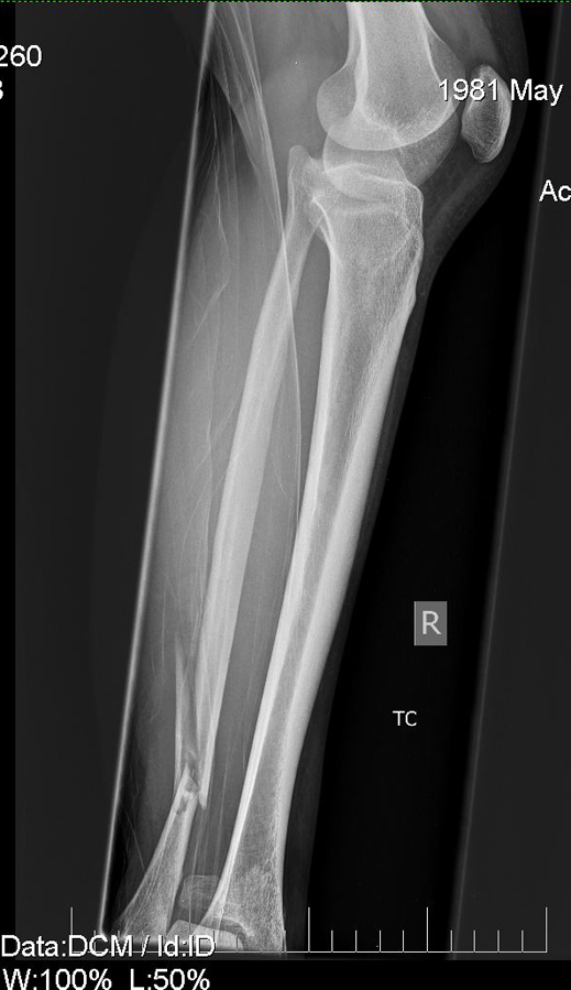 Things Of Unusual Beauty X Rays Of My Broken Bones Blogs Archinect